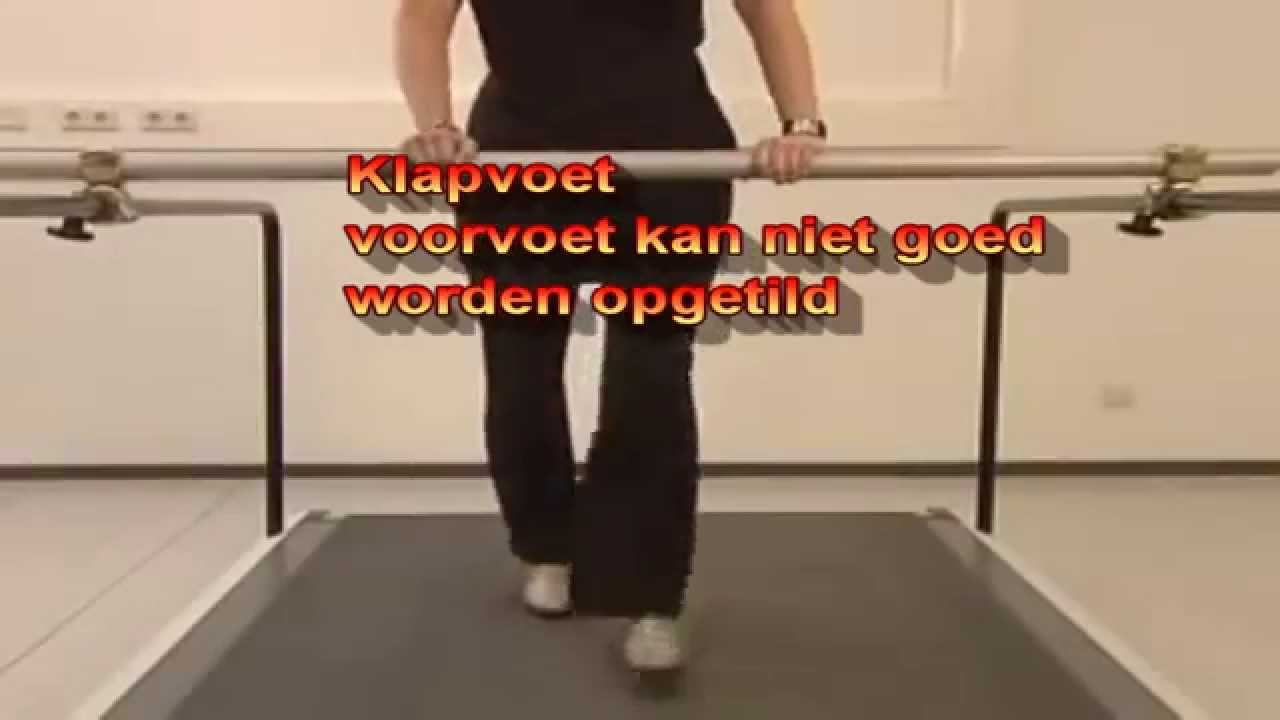 Klapvoet Youtube