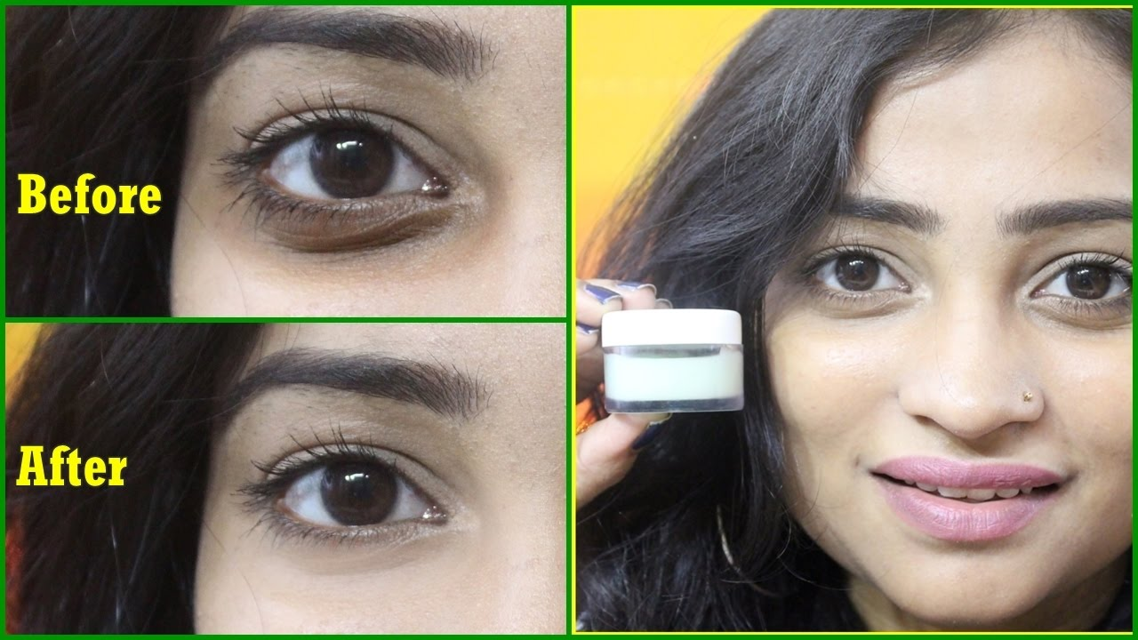 Homemade Under Eye Cream To Remove Dark Circles Wrinkles 100