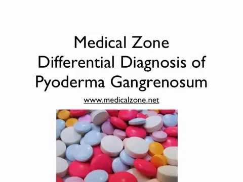 Medical Zone - Differential Diagnosis of Pyoderma Gangrenosum