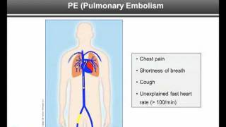 Part 2: Symptoms - DVT and PE: What Patients Need to Know