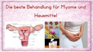Die beste Behandlung für Myome und Hausmittel