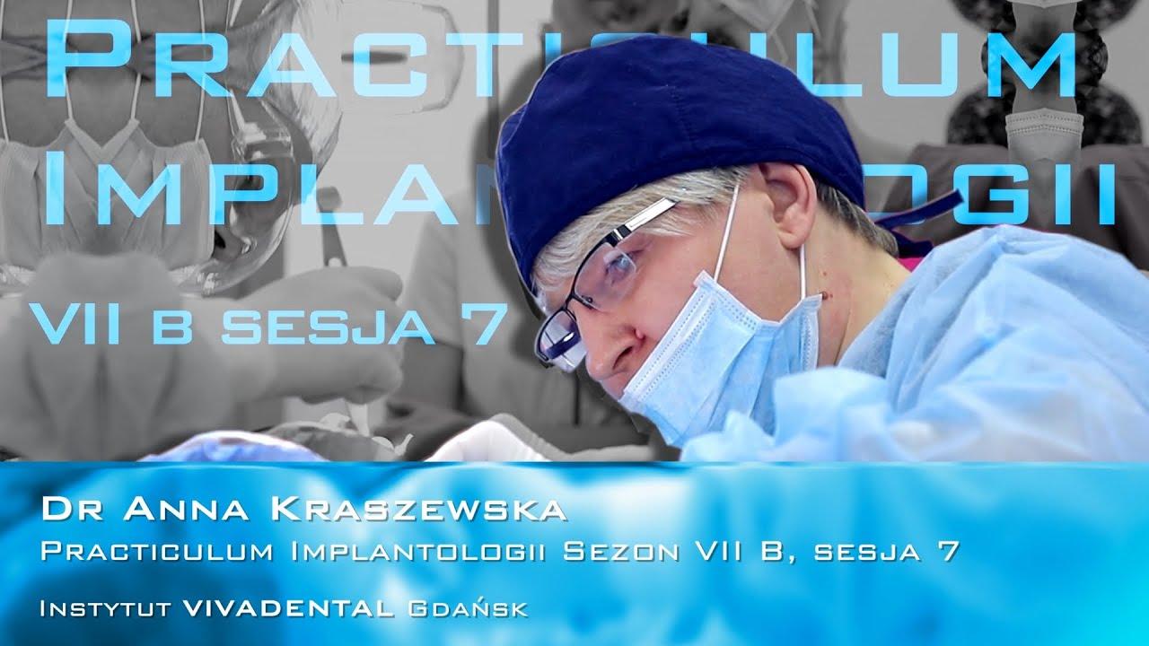 Dr Anna Kraszewska na Practiculum Implantologii