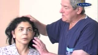 Estiramiento Facial, Blefaroplastia y Rinoplastia POST-OP 2do día (Face lift)