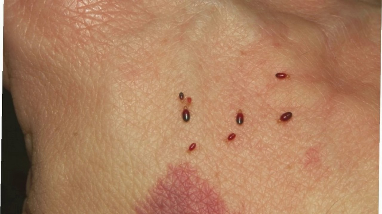 difference between mosquito and bed bug bites - youtube