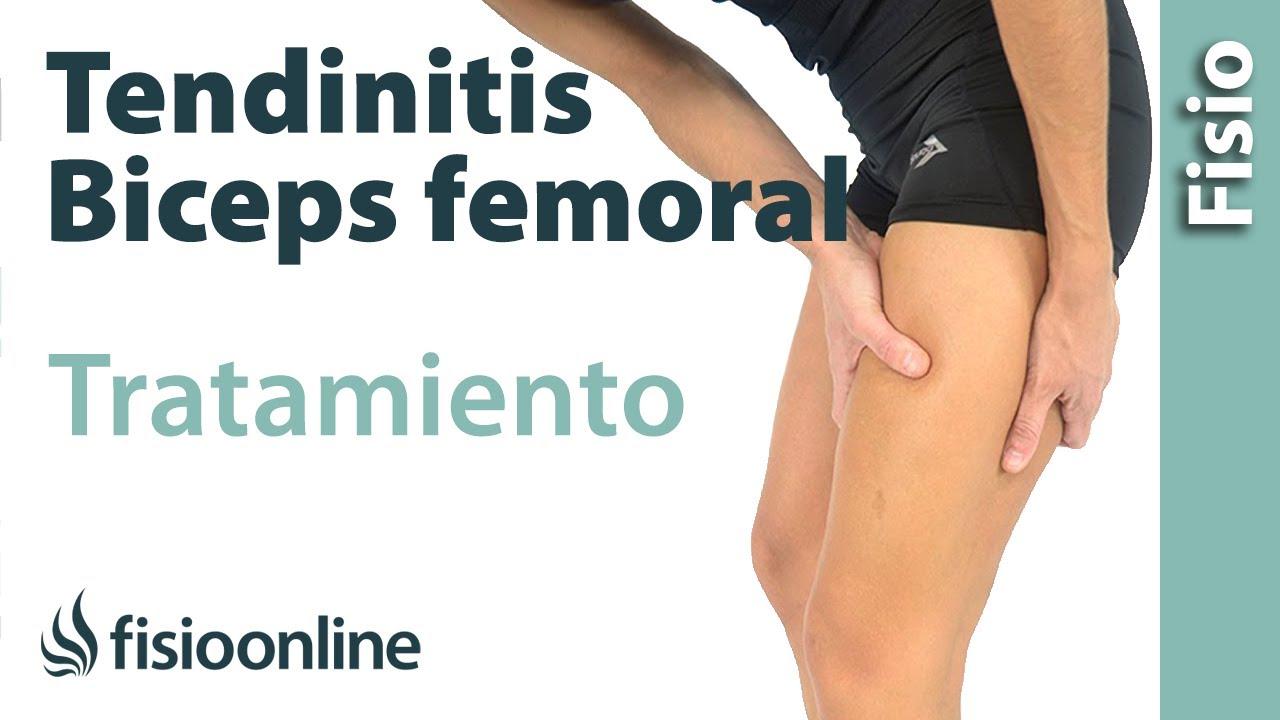 Dolor del biceps femoral