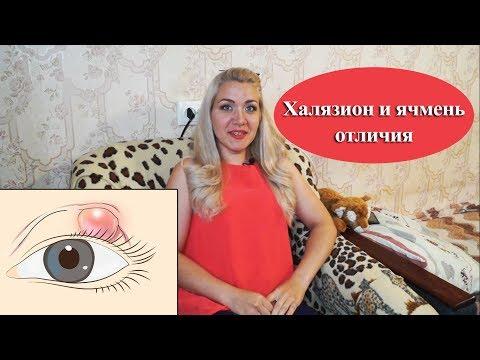 Чем отличается Халязион и Ячмень на глазу, как лечить? Анюта Журило
