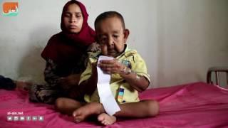 """بالفيديو.. مرض غريب يحول طفل بنغالي إلى """"عجوز"""""""