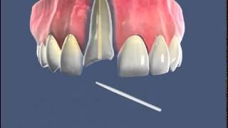 Лечение корня   Композитная вкладка и коронка(В этом видео показано лечение корня зуба, установка вкладки и коронки., 2015-08-03T06:28:11.000Z)
