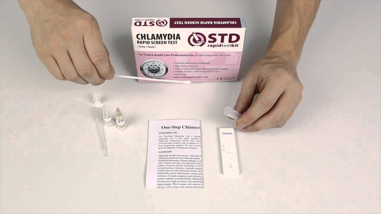 Chlamydia Test: Quickly Know If You Have Chlamydia Or Not