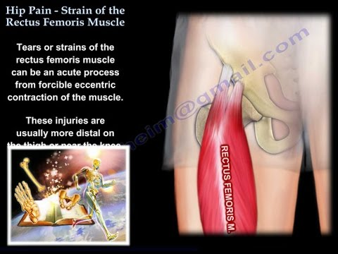 Hip Pain, Strain Of The Rectus Femoris, anatomy Everything You Need To Know Dr. Nabil Ebraheim