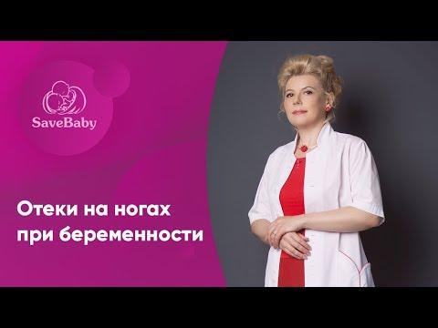 Отеки на ногах при беременности. Елена Никологорская. Акушер-гинеколог. СПб