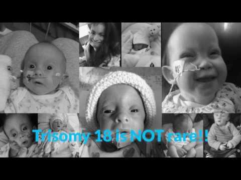 Emilys Story - Trisomy 18