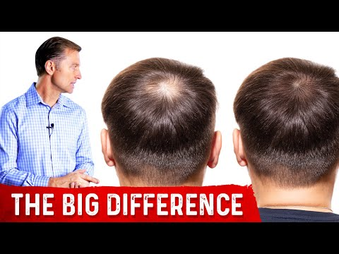 Normal Hair Loss vs. Abnormal Hair Loss