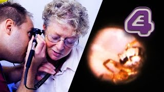 Spider Gets Trapped Inside Woman's Ear! | Bizarre ER