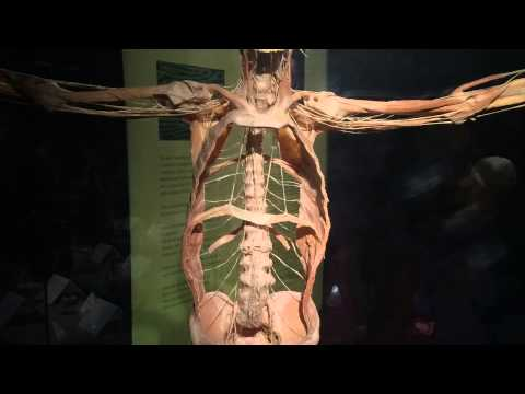 Beware! Graphic!! Pics from Body worlds vital exhibition