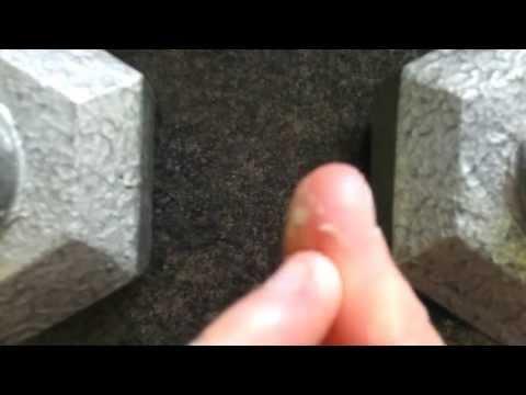 Dermatophagia/Onychophagia: Nail Biting and Skin Picking
