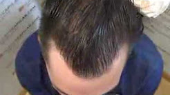 3939 FU's. Hair Transplant by FUE Technique. Advance Alopecia. Injertocapilar.com. 569/2011