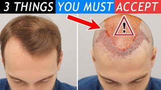 3 Things You Must Accept before Your Hair Transplant!!!