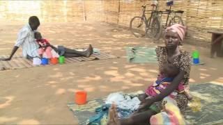 سوء التغذية يجتاح جنوب السودان