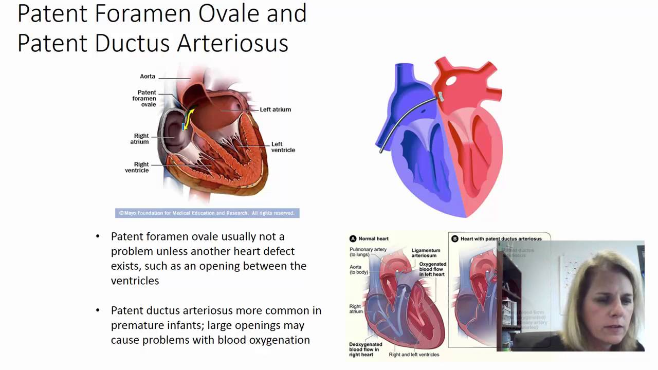 Fetal circulation and heart development - YouTube