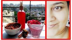 hqdefault - Red Rose Tea For Acne
