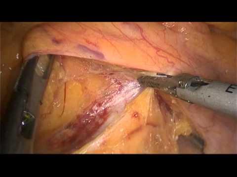 рак прямой кишки - передняя резекция