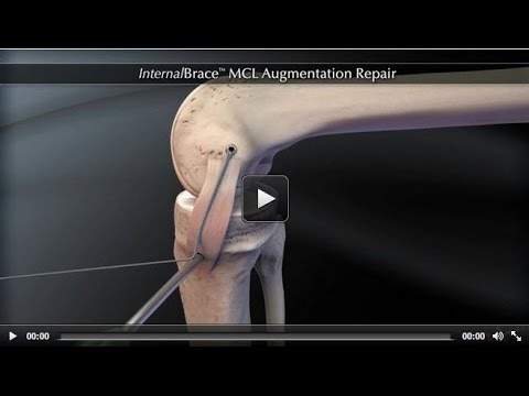 InternalBrace™ MCL Augmentation Repair