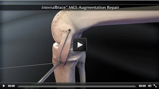 InternalBrace™ MCL Augmentation Repair