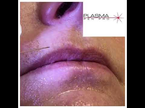Plasma Pen Pro - Upper Lip Plasma Skin Tightening Training - YouTube
