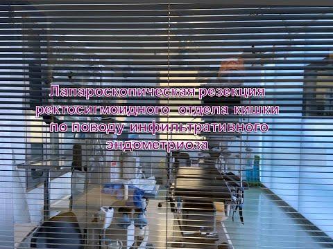 Лапароскопическая резекция ректосигмоидного отдела кишки по поводу инфильтративного эндометриоза.