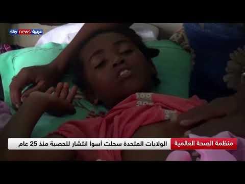 منظمة الصحة العالمية.. 9.7 مصاب بالحصبة أغلبهم من الأطفال خلال 2018  - 16:00-2019 / 12 / 6