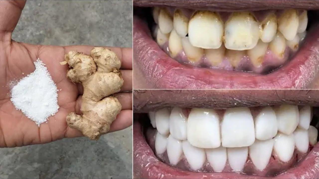 في دقيقتين فقط ، تبييض الأسنان بيضاء ولامعة مثل اللؤلؤ ، هذه الوصفة / العلاج في المنزل