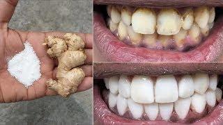 Download في دقيقتين فقط ، تبييض الأسنان بيضاء ولامعة مثل اللؤلؤ ، هذه الوصفة / العلاج في المنزل Mp3 and Videos