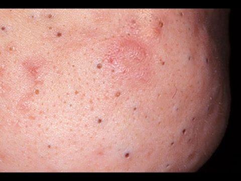 Каталог » Для лица » Проблемная кожа » Очистка пор