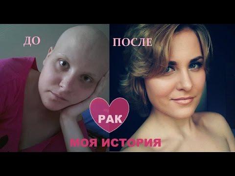 Голые раком