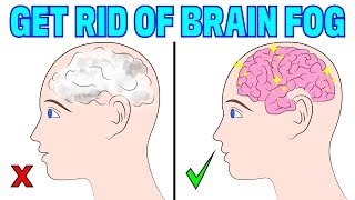 The 2 Step Natural Solution To Get Rid Of Brain Fog!