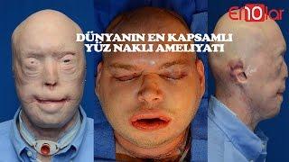 En kapsamlı yüz nakli yapılan patrick'in 10 madde İle ameliyat aşaması
