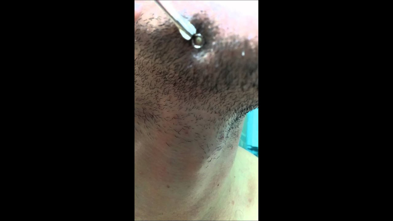 Ingrown Hair in Beard Pop