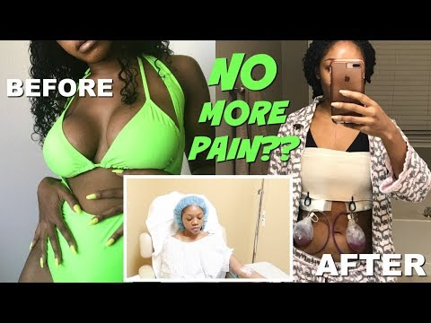 THE TRUTH ABOUT BREAST IMPLANTS | MY EXPLANT SURGERY EXPERIENCE VLOG | Breast Implant Illness
