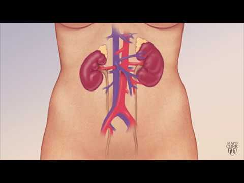 Mayo Clinic Minute: Understanding chronic kidney disease