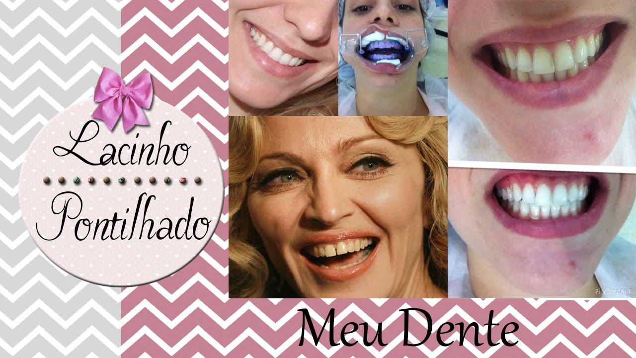 Como Arrumei Meus Dentes Sem Aparelho Clareamento Dental Dente Da