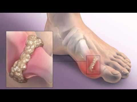 Горит большой палец на ноге и болит