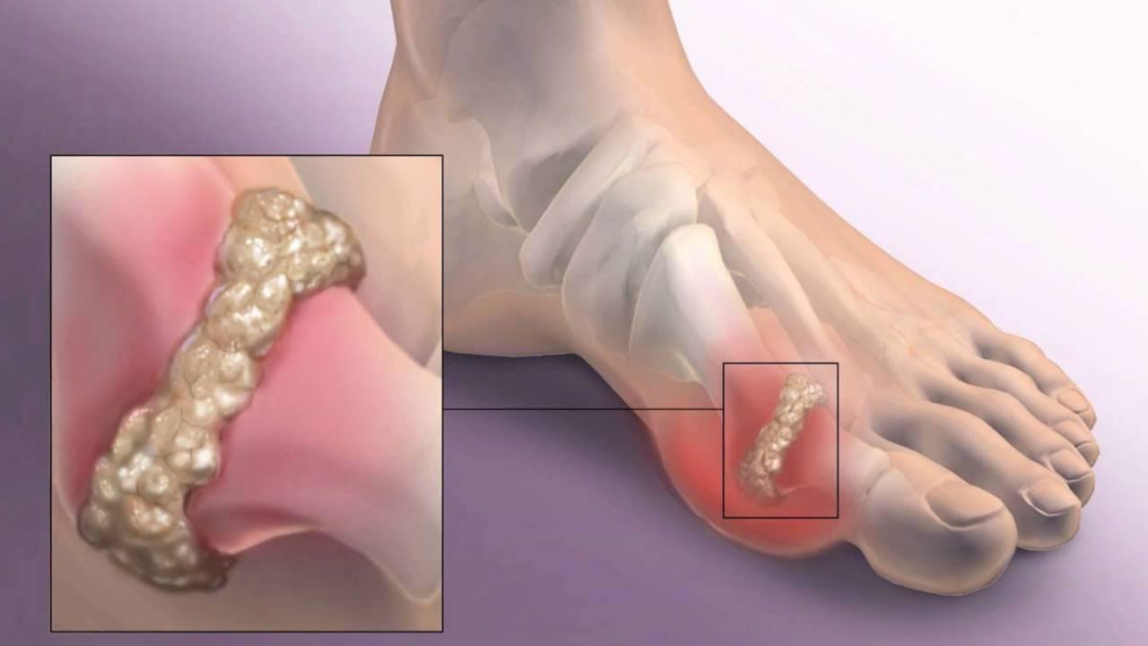подагра болит палец на ноге что делать
