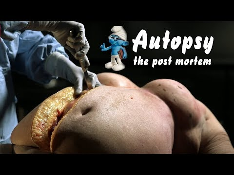 Obese Autopsy : The Post Mortem