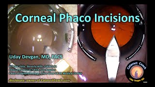 compilation video: corneal phaco incisions for cataract surgery