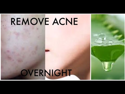 How to Remove Acne Permanently Overnight with Aloe Vera Gel / pimples & acne treatment at home