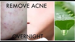 hqdefault - Aloe Vera Overnight Acne