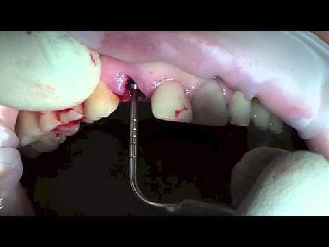 Бескровная имплантация зубов. Андрей Геннадьевич Ермолаев. 18+