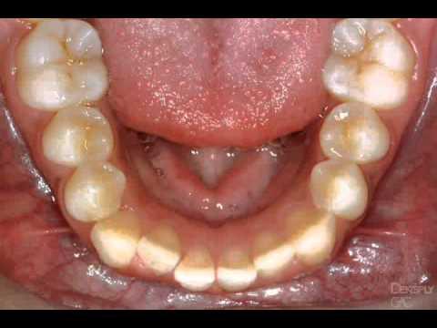 Filing Teeth Flv