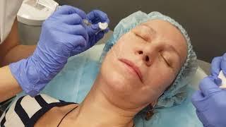 Обучение косметологов , мастер-класс проводит Врач дерматолог - косметолог Хуснутдинова Н.В.